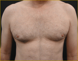 Hassan Shaaban Male Breast Reduction