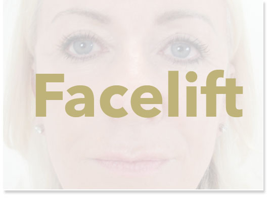Facelift Surgery Results london Liverpool