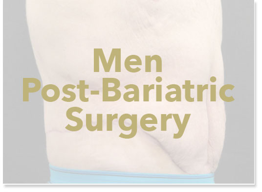 Men's weight loss surgery results