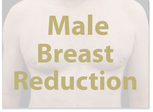 male-breast-reduction-london-liverpool