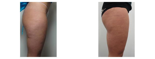 Here we can see the loss of fat on the back of thighs and better definition between the buttocks and thighs.