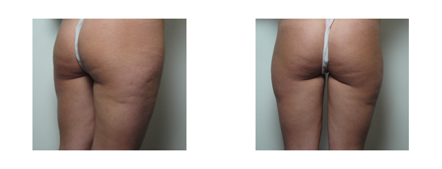 This 23-year-old patient was very slim, but complained of cellulite and 'heavy thighs'. These pictures illustrate third-degree cellulite outside both thighs, excess fat outside both thighs, uneven buttock lines with the right lower than left, and deep transverse lines in the lower buttocks.