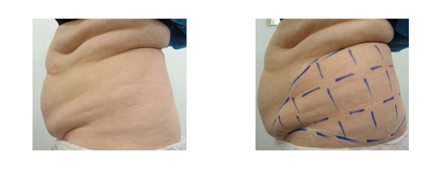 By targeting these marked-up areas, we can produce a much better contour to the waist area.