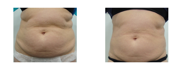 These before and after photos demonstrate the result we achieved with laser liposuction.