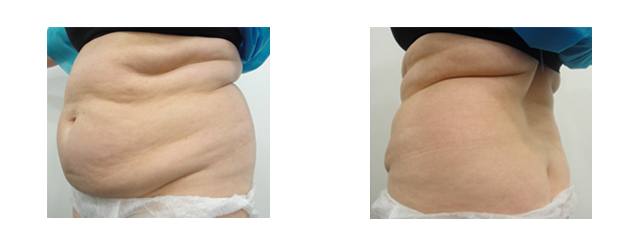 However, her main concern was the waist area, so she sought a laser liposuction procedure to give her a better contour to this area.
