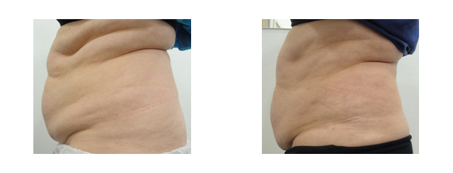 The procedure produced smooth younger-looking skin; not just of the treated area but all over the abdomen.