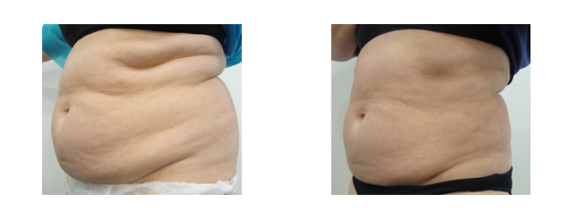 Despite the large amount of laser liposuction, there was significant skin tightening achieved.