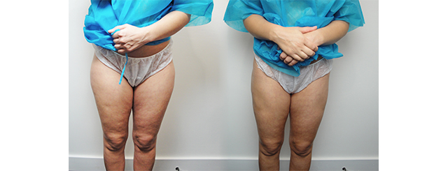 These 360-degree before and after photos show the cellulite reduction possible with a Cellulaze treatment.