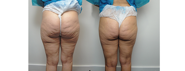 Combined treatment of Cellulaze and laser body contouring results in significant reduction of cellulite and loss of saddlebags.