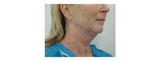 A 52-year-old woman complains of excess fat and skin of the neck and a lack of definition of the jawline.