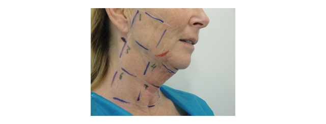 This slide shows the marking for the laser face and neck lift. Square 4 and 7 indicates the laser liposuction and square 1 to 8 for skin tightening. The red marks the facial nerve to the angle of the mouth and the black marks the sites for the incisions.