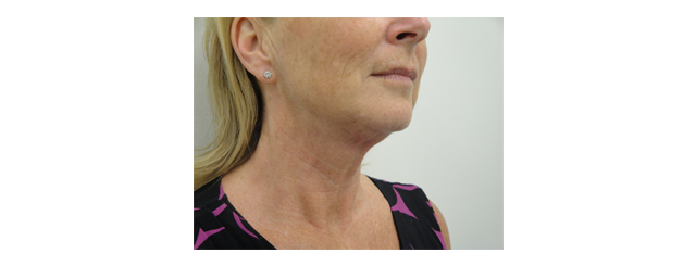This shows the results after four months. There has been a loss of neck fat, a disappearance of skin folds and creases, a creation of the normal angle of the neck and softer jowls and a better definition of the jawline.