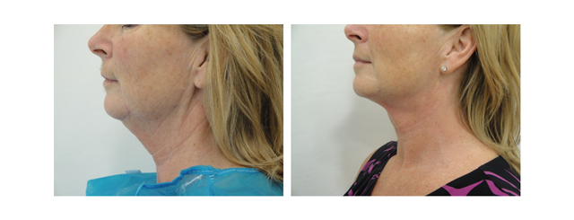 This before and after shows the results that have been achieved. There has been a creation of a normal angle to the neck, a disappearance of the prominent skin fold below the ear and tighter, younger-looking skin with a loss of creases.