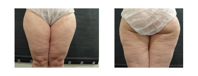 This patient was a 41-year-old woman with abnormal body fat distribution.