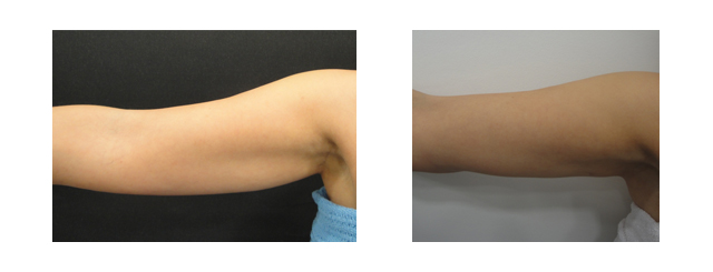 These before and afters illustrate that the contour of the arm has changed from curved down to being straight with an overall smaller-looking arm.