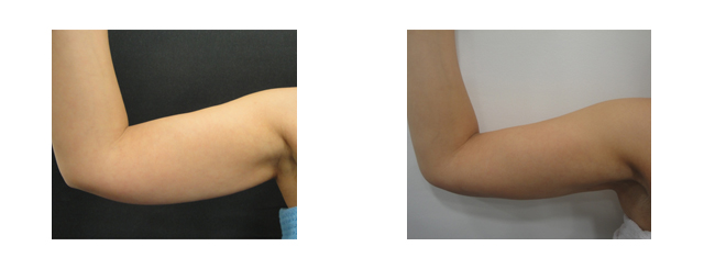 These before and after photos show the loss of fat and shrinkage of skin below the level of muscle attachment (about an inch of fat reduction and 2 inches of skin tightening). It also results in hiding the hairy part of armpit instead being exposed forward.