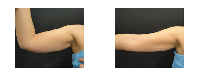 This 37-year-old patient complained of excess hanging skin on her inner arms and skin wrinkling outside the arms.