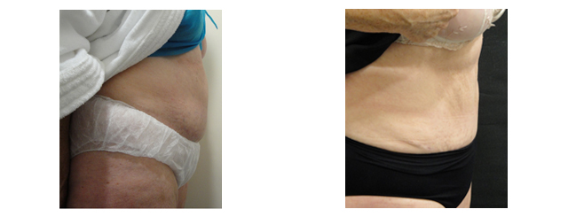 There is a better contour of the abdomen with younger-looking skin after the procedure.