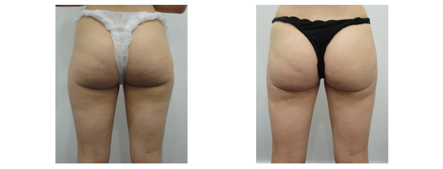 Post-op photo shows loss of saddlebags, loss of cellulite, slimmer thighs and tighter skin.