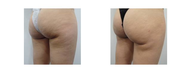 Post-op photos shows curved bottom lines with more rounded feminine buttocks.