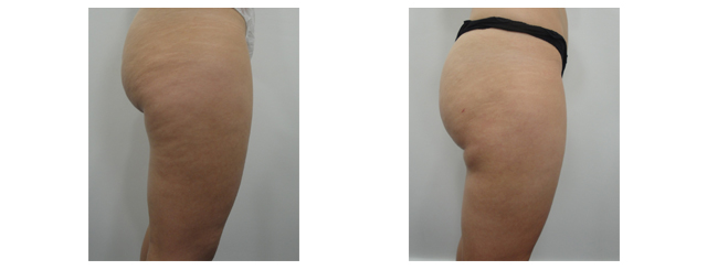 Post-op photo shows loss of cellulite, slimmer thighs, tighter skin and better contour of buttocks.