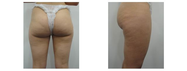 A 25-year old complained of saddlebags, cellulite and lax saggy skin of thighs and buttocks. She also has transverse bottom lines.