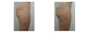 cellulaze body sculpting before and after image