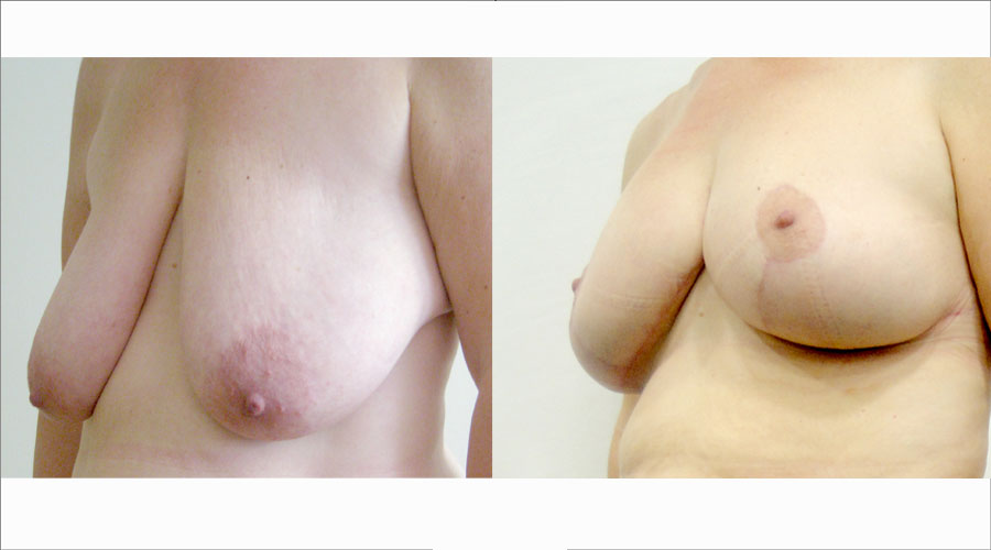 Breast Uplift London & Liverpool