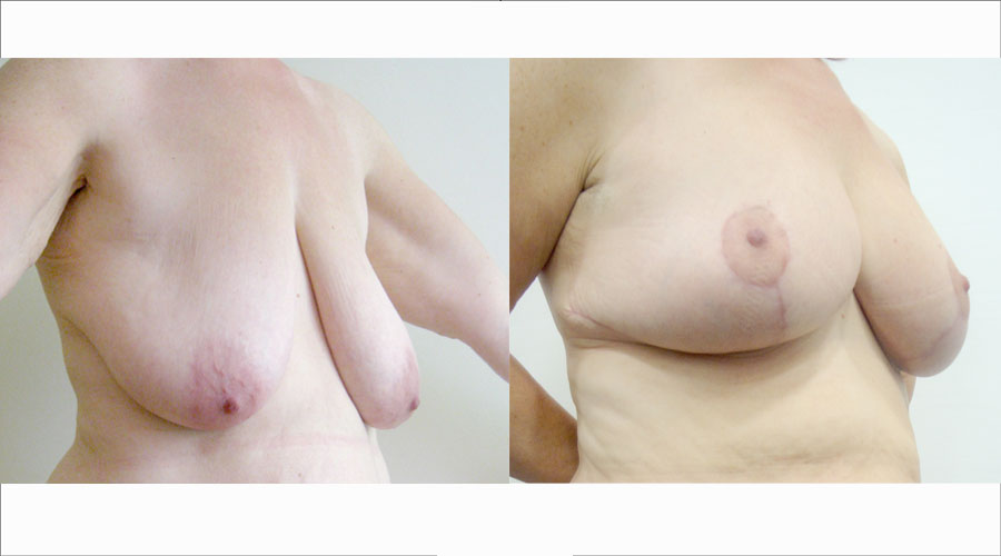 Breast-Uplift-London