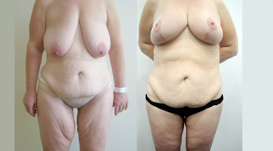 Female weight loss surgery london liverpool