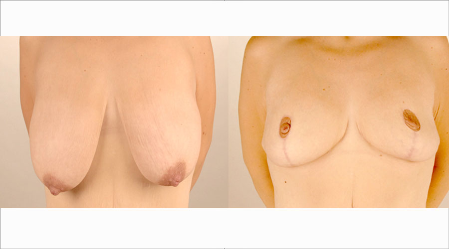 Breast auto augmentation pictures before and after london liverpool