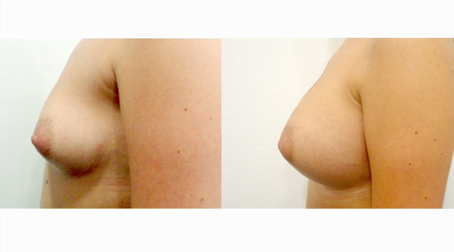 breast implants results london liverpool