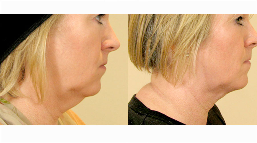 Neck Liposuction London & Liverpool