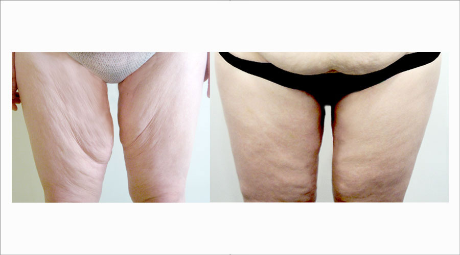 Thigh Lift Surgery London & Liverpool