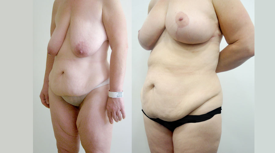 Weight Loss Surgery for Woman