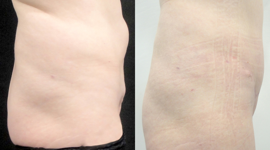 Abdominoplasty before and after results