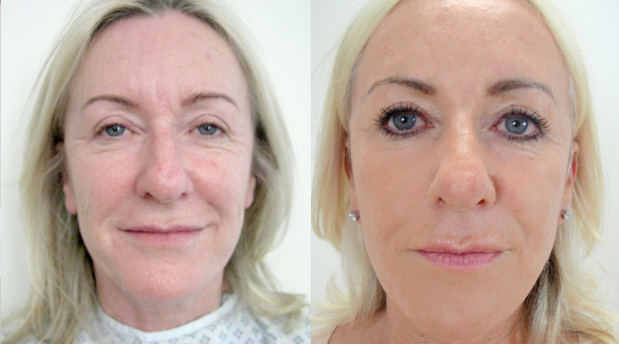Facelift Surgery London & Liverpool