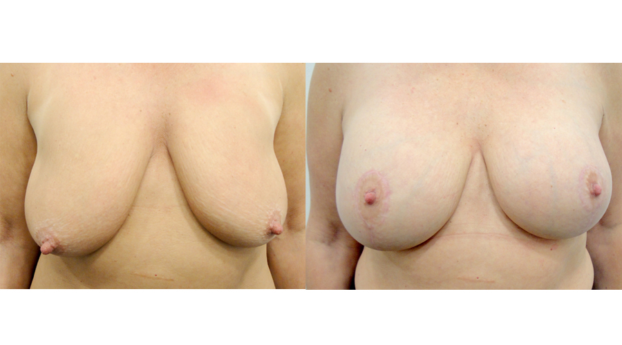Mastopexy and Breast Augmentation Result London & Liverpool