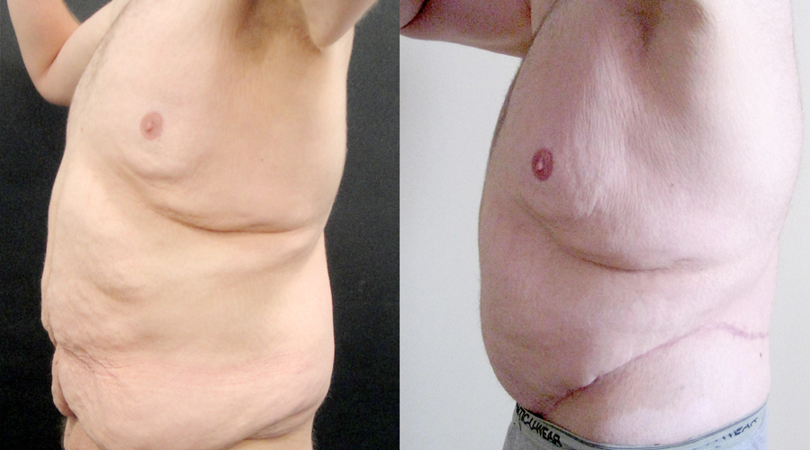 Men Post-Bariatric Surgery Results London & Liverpool