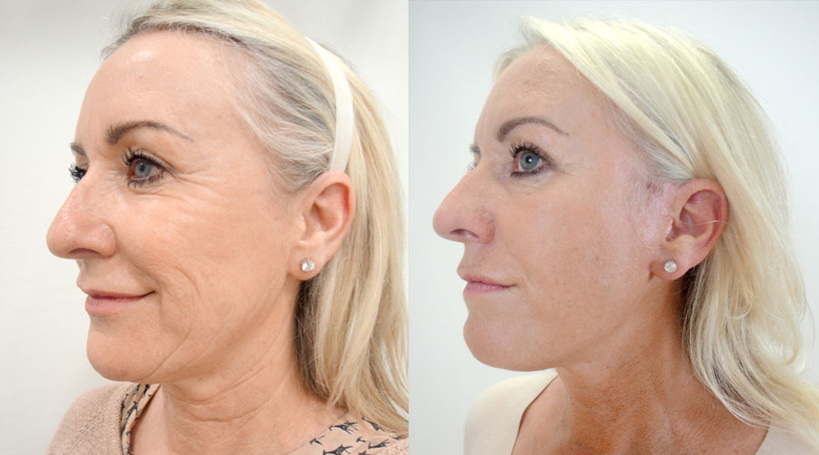 facelift results london manchester