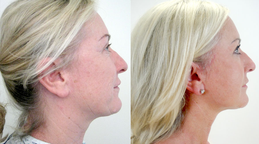 facelift results london liverpool
